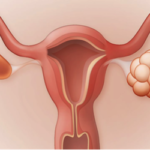 Polycystic Ovarian Syndrome (PCOS): Causes-Symptoms-Treatment